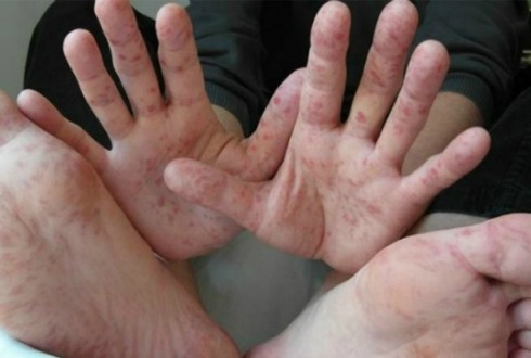 Brota virus que afecta a niños
